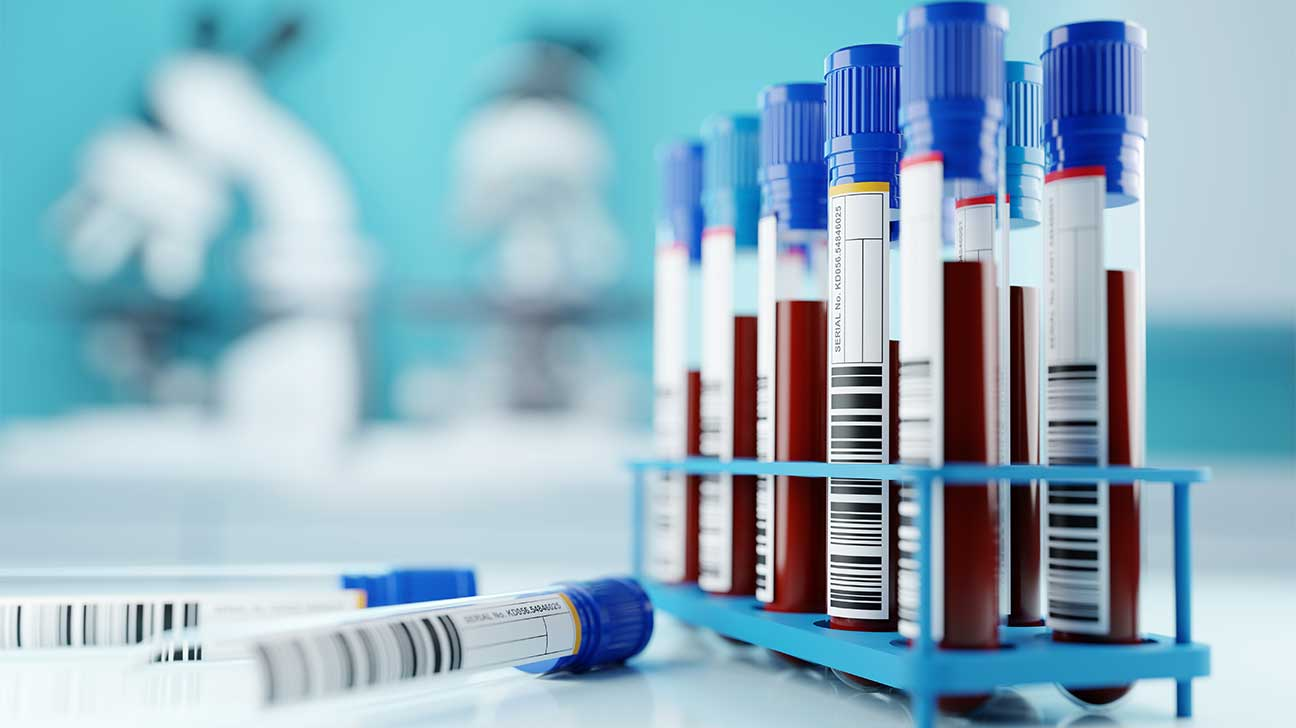 How Long Does Heroin Stay In Your Blood? Heroin Blood Test Detection Time