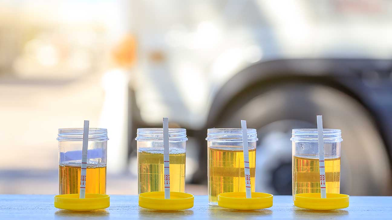 How Long Can Adderall Be Detected In Your Urine?