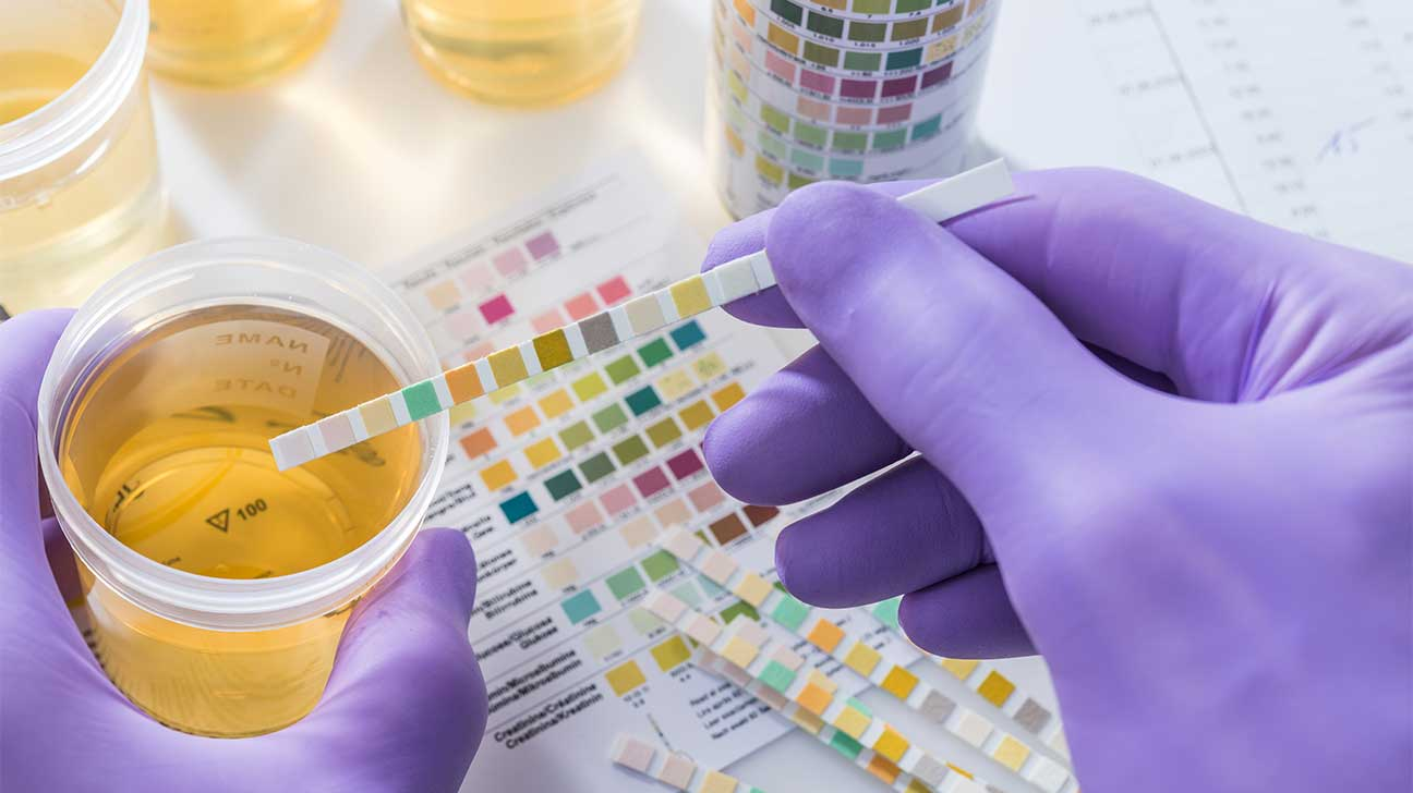 How Long Can Codeine Be Detected In Your Urine?