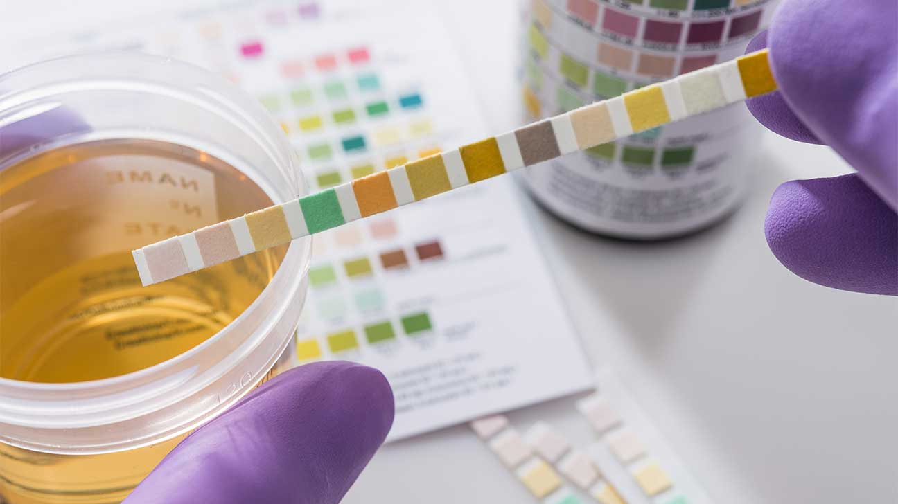 How Long Can Klonopin Be Detected In Your Urine?