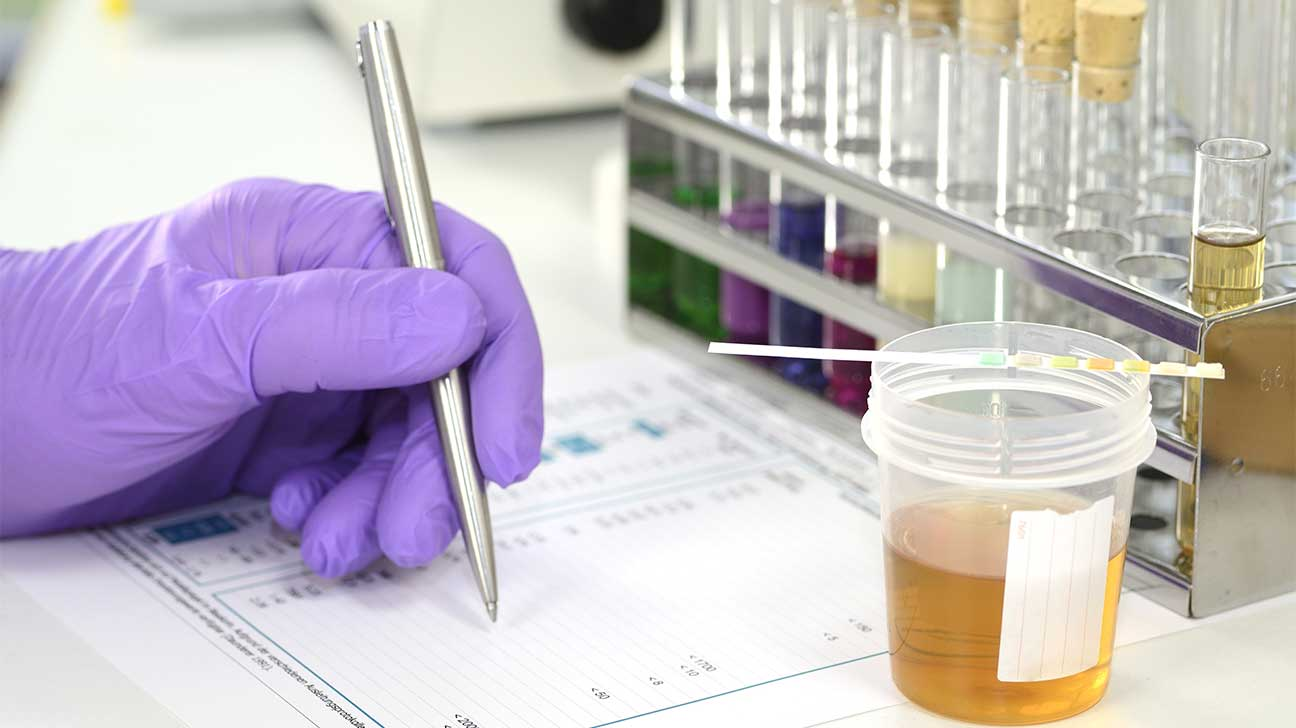 How Long Can Oxycodone Be Detected In Your Urine?