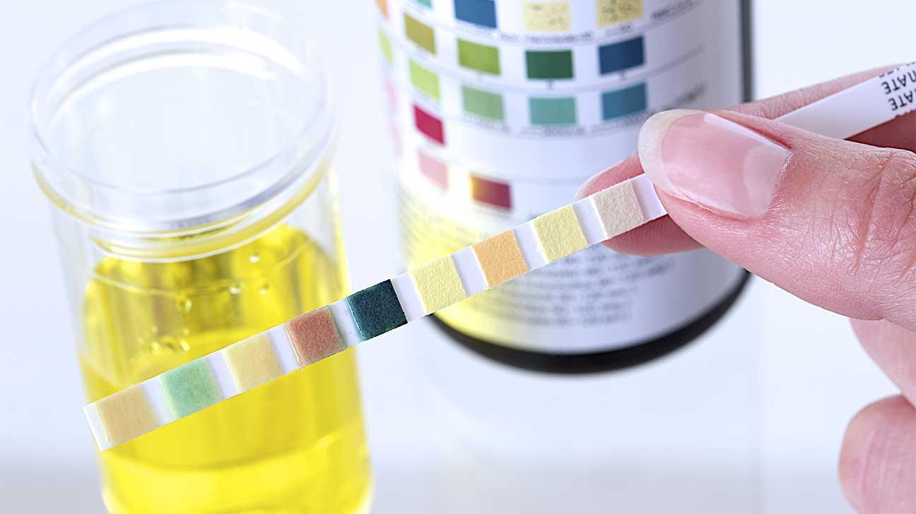 Detecting Opioids Through A Urine Test