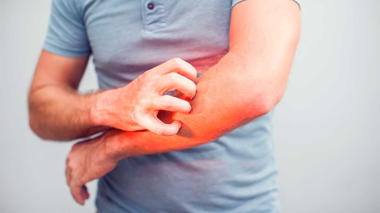 Why Does Heroin Make You Itch?