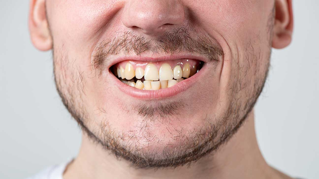 Does Suboxone Rot Your Teeth? - Suboxone Tooth Decay